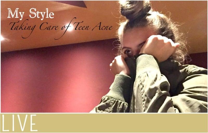 my-style-teen-acne-tips-treatment